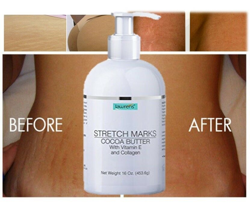 Best Seller Stretch Mark Removal Cream Reduce Scar Treatment For Sale Online Ebay