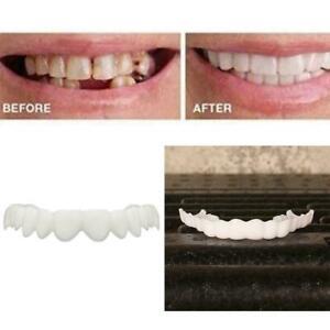 Comfort-Kosmetische-Zahnmedizin-Prothese-Falsche-Zaehne-Veneer-E1S8-M3U6