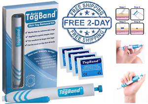 Auto Tagband Skin Tag Remover Device Medium Large Skin Tags