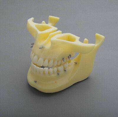 Dental Model #2016 01 - Orthodontic Mini Screw Demonstration Demo