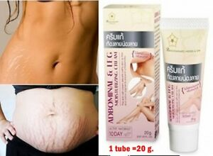 The Best Stretch Mark Cream Removal Cream Reducer Scar Treatment