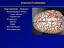 miniatura 4 - 97-pagina-PATOLOGIA-NEUROPATOLOGIA-presentazione-PowerPoint-su-CD
