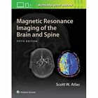 Magnetic Resonance Imaging of the Brain and Spine by Scott W. Atlas (Hardback, 2016)