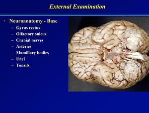 97-pagina-PATOLOGIA-NEUROPATOLOGIA-presentazione-PowerPoint-su-CD