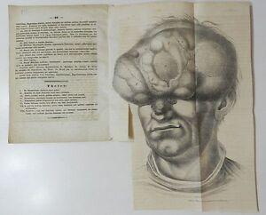 INTROUVABLE-DE-SARCOMATE-ANNULARI-H-HIRSCH-1837-1-PLANCHE-DEPLIANTE