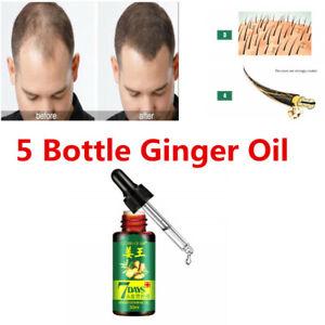 3 Bottle Fast Hair Growth Dense Regrowth Ginger Serum Oil Anti Loss Essence 30ml