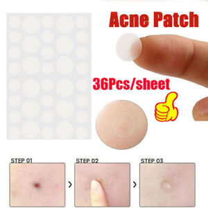 36Pcs-Skin-Tag-amp-Acne-Patch-Hydrocolloid-Acne-and-Skin-Tag-Remover-Patches-lo