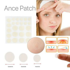 24 Patches Face Spot Care Skin Tag Treatment Sticker Acne Remover