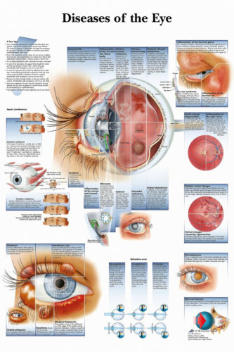 NEW DISEASES OF THE HUMAN EYE INFOMATIONAL CHART DIAGRAM PRINT PREMIUM POSTER