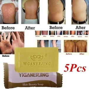 5Pcs Sulfur Soap Acne Oil Contral Anti Fungus Bacterial Skin Body Cleaning Care