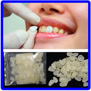 Dental-ultraduenne-Whitening-Veneers-Resin-Teeth-oberen-Front-Shade-100Pcs-FY