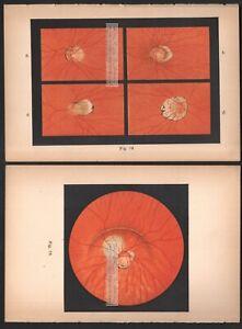 Retina-Eye-Fundoscopy-4-Old-1905-Ophthalmoscope-Color-Litho-Prints-Medical-5