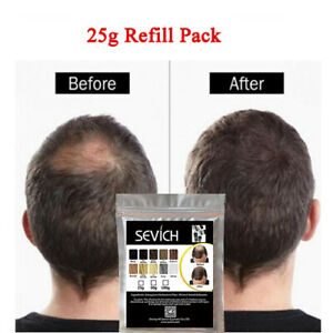 25g-Refill-Bag-Hair-Thickening-Fibres-Building-Fibers-Hair-Loss-Concealer-Powder