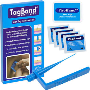 TagBand-Skin-Tag-Remover-Device-for-a-Fast-amp-Effective-Skintag-Removal-Treatment