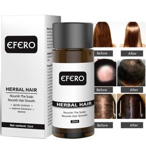 Fast-Hair-Growth-Dense-Regrowth-Essence-Treatment-Women-Men-Anti-Loss-Booming