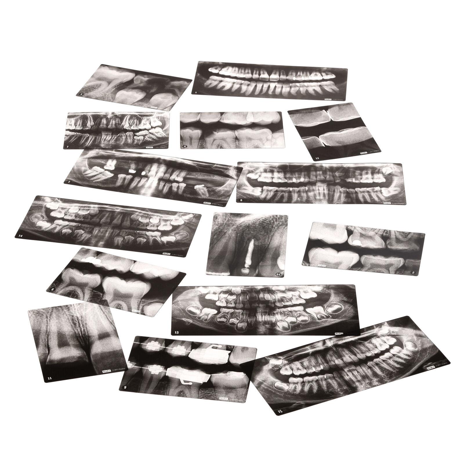 Set Di Raggi X dentali eyfs, KS1 la scienza, stelo Play ANATOMIA UMANA corpo Esplorazione