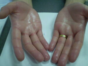 HANDS-amp-FEET-IONTO-Simple-Effective-Treatment-for-Sweating-Home-Iontophoresis