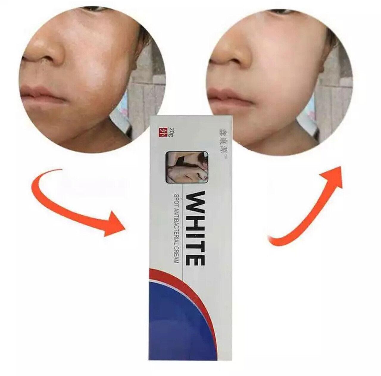 Drula Pigment Cream Vitiligo White Spots Self Tanner For Sale Online Ebay