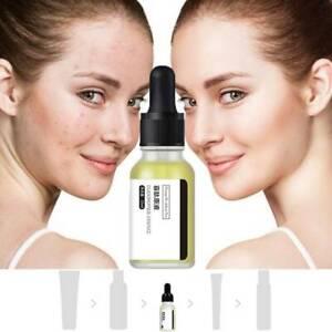 Firming-Anti-Wrinkle-Oligopeptide-Essence-Repair-Red-Blood