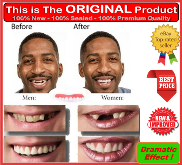 Instant smile top teeth veneers comfort fit flex temporary cosmetic perfect instant smile top teeth veneers comfort fit flex temporary cosmetic kit solutioingenieria Image collections