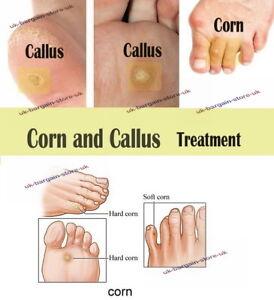 treatment for hard skin on feet