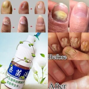 Hautpflege-Nagel-Repair-Behandlung-Cleanser-Fluessigkeit-Nagelpilz-Entfernen