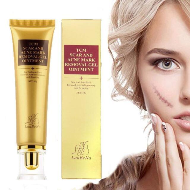 acne scar cream