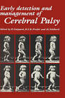 Early Detection and Management of Cerebral Palsy by Kluwer Academic Publishers (Hardback, 1987)