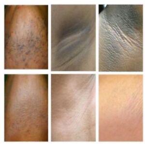 skin bleaching cream for black skin