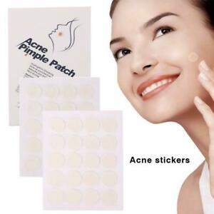 40x-Acne-Remover-Pimple-Patch-Stickers-Tag-Removal-Facial-Spot-Face-Skin-Care