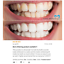 MATRIX-SUPER-WHITE-LED-TEETH-WHITENING-GEL-KIT-SYSTEM-HI-TOOTH-WHITENER-SMILE thumbnail 3