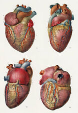 ML16 Vintage 1800's Medical Human Heart Surgical Antique Poster Re-Print A4