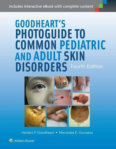 Photoguide to Common Pediatric and Adult Skin Disorders by ...