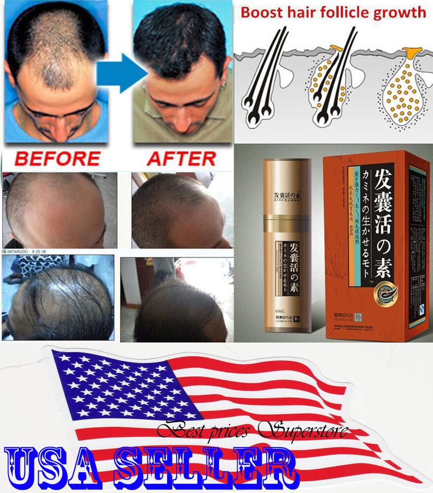 Women's Hair Loss Treatments – the Official Guide