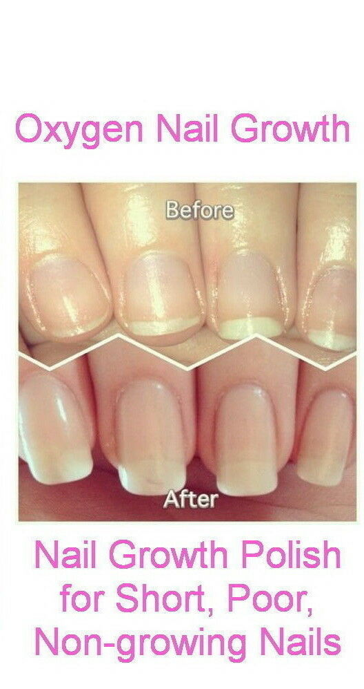 Nail Growth Polish for Short Non-growing Nails SUPER for you | eBay