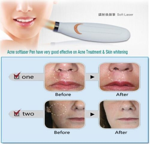 Red Light Acne Scar Removal Pen Skin Repair Mark Remover