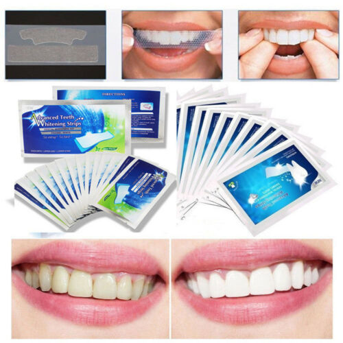 Advanced Teeth Whitening Strips Stickers Health Dental Tooth Bleaching Oral Care