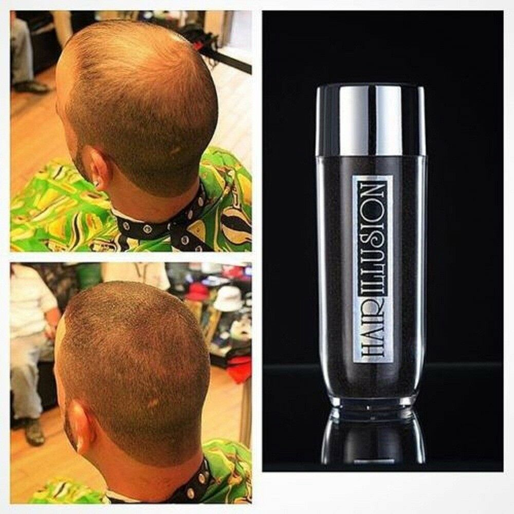 Hair Illusion DIY Hair Fibers Hair Gain Loss Bald Spot Men ...