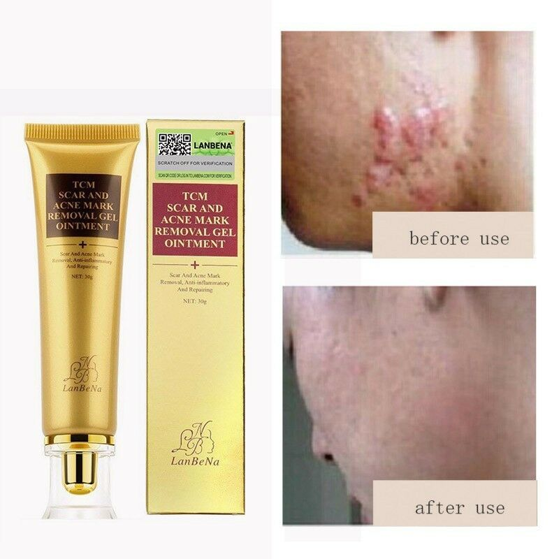 Acne Scars Removal Stretch Mark Keloid Surgery Burn Treatment Removal Gel 8g. Health & Beauty