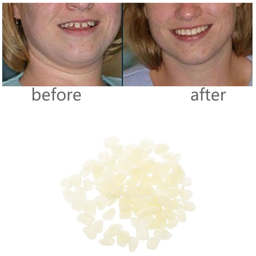 how to fix a veneer tooth at home