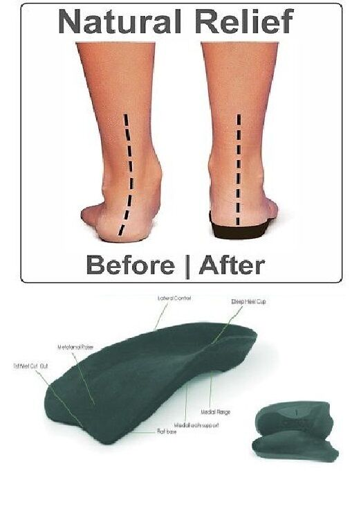 SLIMFLEX SIMPLE RIGID INSOLE ORTHOTIC ARCH SUPPORT AND ...
