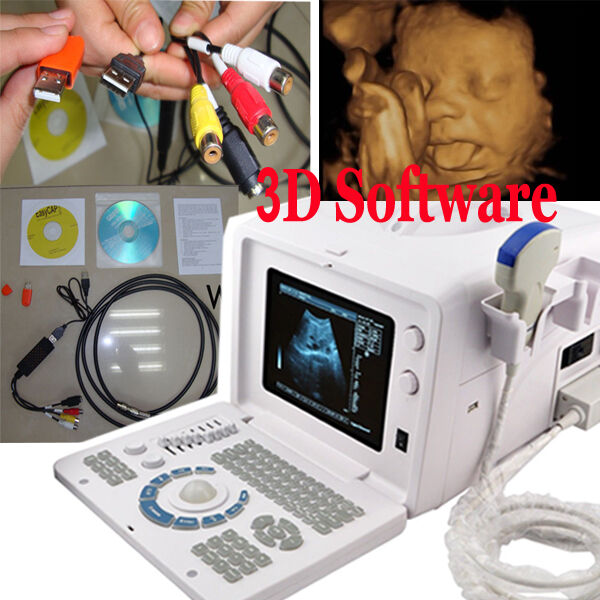 digital ultrasound machine