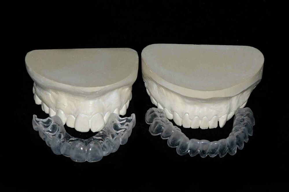 Custom Teeth Whitening Bleaching Tray Kit Whiter Smile