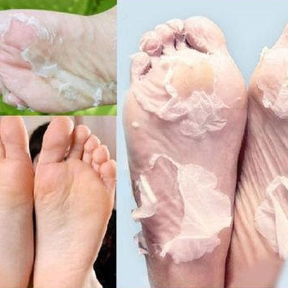 how to get rid of dead skin on my feet