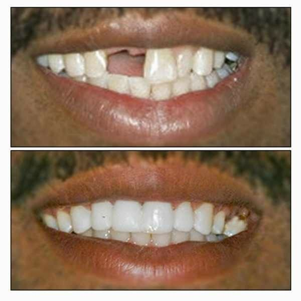 Crown Point Dental Care