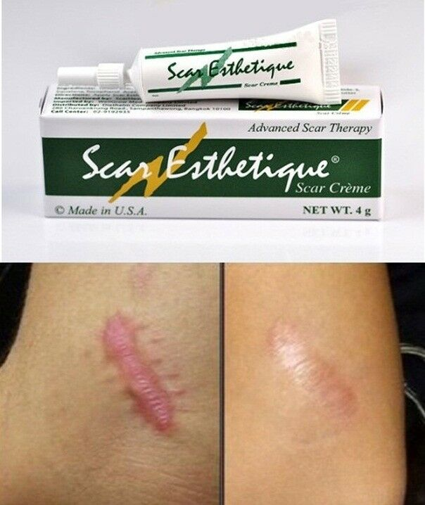 ... ADVANCED SCAR THERAPY Treatment Burns KELOID ACNE SCAR 4G. | eBay