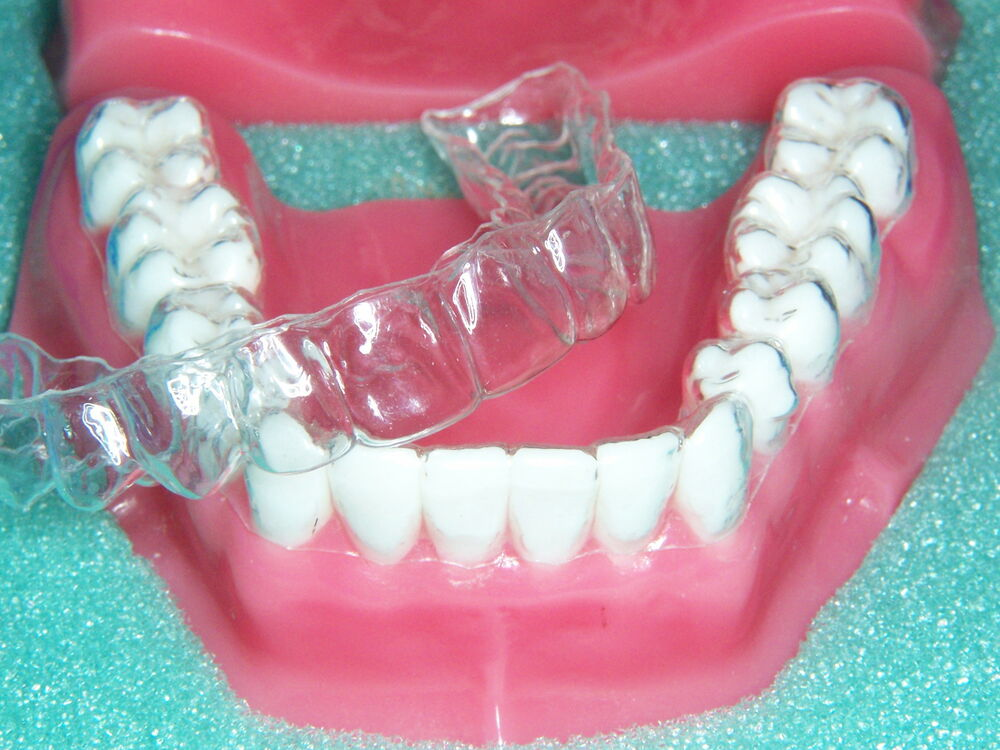 Bright Professionally Made Dental Teeth Retainers For Use