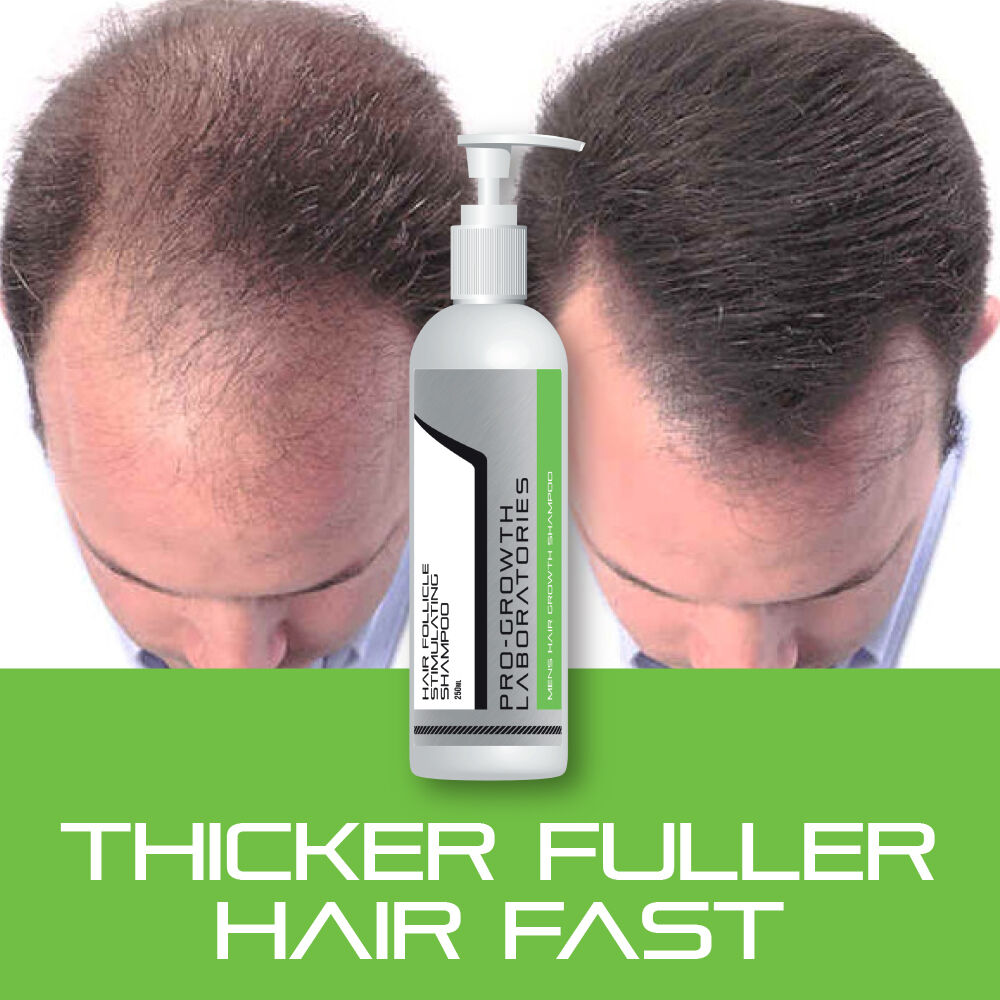PRO-GROWTH MENS HAIR GROW SHAMPOO STOP HAIR LOSS THICKER ...