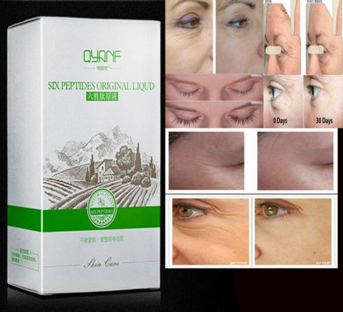 Cream facial removing wrinkle she