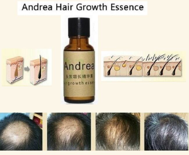 ginger as hair loss treatment essay Another study appearing in the november 2003 issue of radiation research found that in mice, five days treatment with ginger (10 mg per kilogram of body weight).
